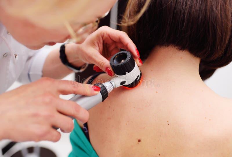 Diagnoinspectionsis del melanoma el doctor examina el topo paciente del ` s imágenes de archivo libres de regalías