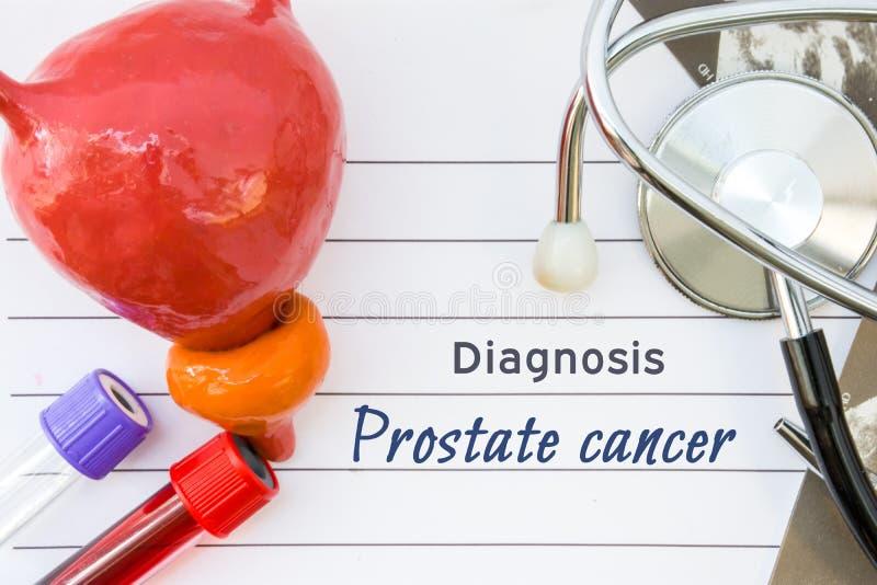 Diagnos av prostatacancer Medicinsk begreppsbild av diagnosprostatacancer med den anatomiska modellen av blåsan med prostatan arkivfoton