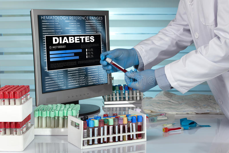 Diagnosen-Diabetes Technikerhände im Labor, das ein b überprüft lizenzfreies stockbild