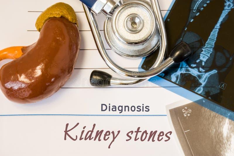 Diagnosen-Nierensteinfoto Zahl der Niere liegt nahe bei Aufschrift der Diagnose der Nierensteine, des Ultraschalls und DES MRI-Te lizenzfreie stockbilder