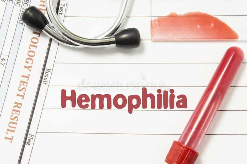 Diagnosi di emofilia Vacutainer della bottiglia del sangue del laboratorio, lastra di vetro con lo striscio di sangue, prova di e fotografia stock