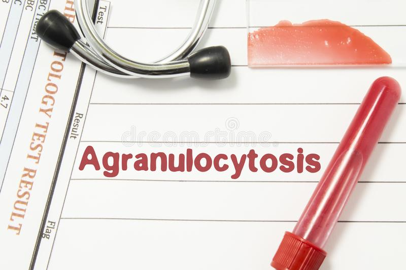 Diagnosis of Agranulocytosis. Laboratory blood bottle, glass slide with blood smear, hematology test, stethoscope lying on noteboo. K with printed text royalty free stock photo