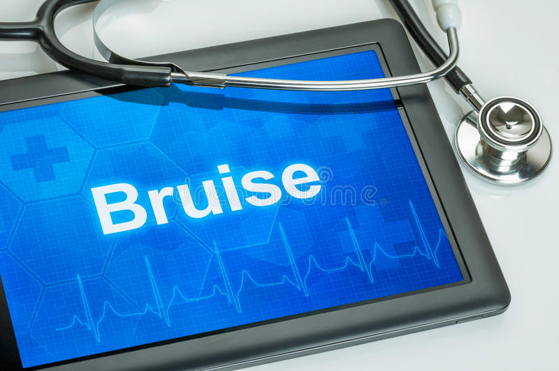 The diagnosis Bruise on the display stock photography