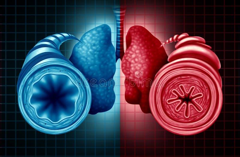 Diagnosis de la salud del asma stock de ilustración