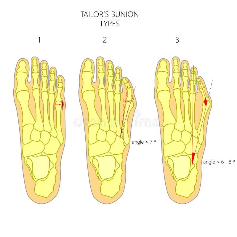 Diagnosis del juanete del sastre ilustración del vector