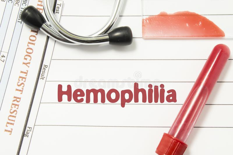 Diagnosis of Hemophilia. Laboratory blood bottle vacutainer, glass slide with blood smear, hematology test, stethoscope lying on. Notebook with printed text stock photography