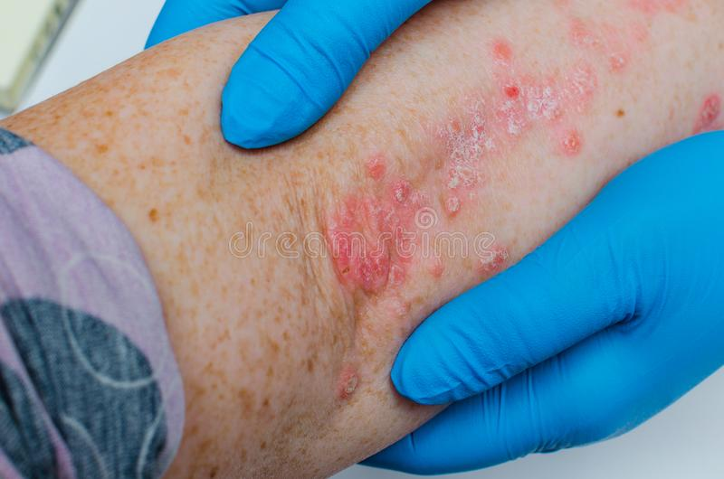 Diagnosis of skin diseases - allergies, psoriasis, eczema, dermatitis. A dermatologist with gloves examines the skin of the elbow. Of a sick patient royalty free stock images