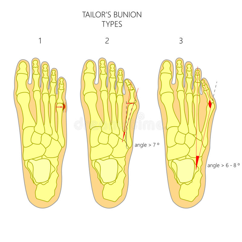 Diagnosis of the tailor's bunion vector illustration