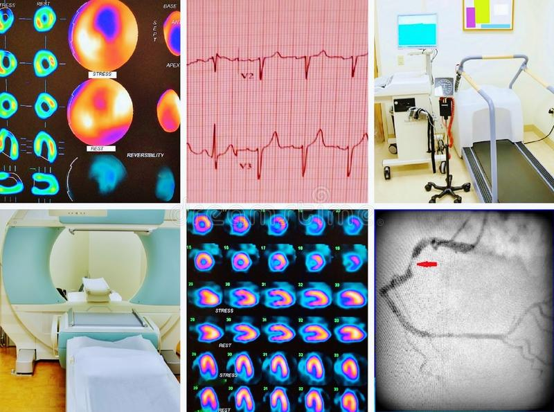 Diagnostics cardiac ischemia collage. There are most important medical diagnostics tools ,which have cardiologist to proof diagnosis of cardiac ischemia ,ECG royalty free stock image