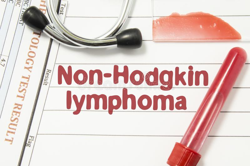 Diagnoza Non-Hodgkin lymphoma Laborancka krwionośna butelka, szklany obruszenie z krwionośnym rozmazem, hematologia test, stetosk zdjęcie stock