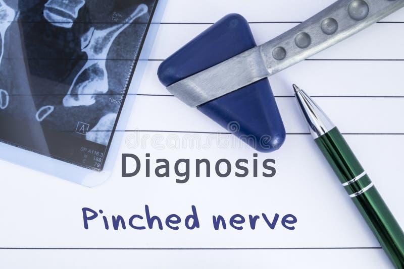 Diagnoza Uszczypnięty nerw Medyczna zdrowie historia pisać z diagnozą Uszczypnięty nerw, MRI wizerunku sakralny kręgosłup i neuro zdjęcia stock