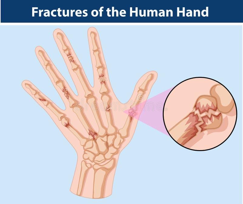 Diagram av brott i mänsklig hand vektor illustrationer