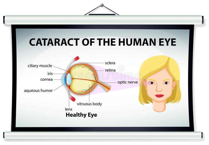 Diagram of cataract in human eye. Illustration royalty free illustration