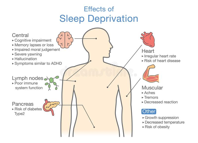 Diagram of Effects of Sleep deprivation. stock illustration