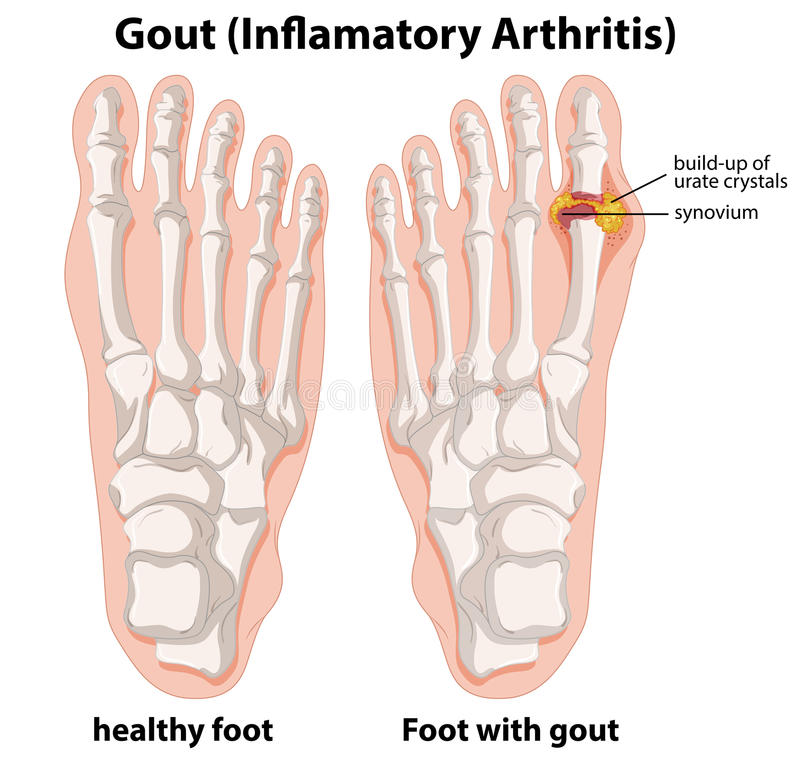 Diagram explanation of Gout in human foot. Illustration royalty free illustration