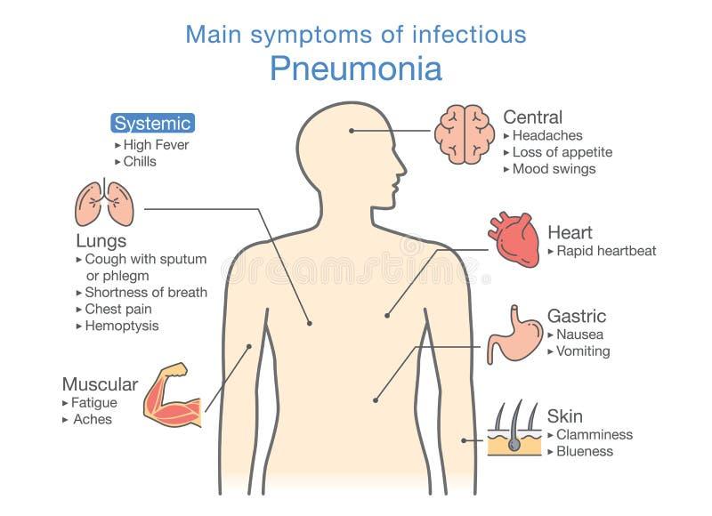 Diagram główni objawy zakaźny zapalenie płuc ilustracji