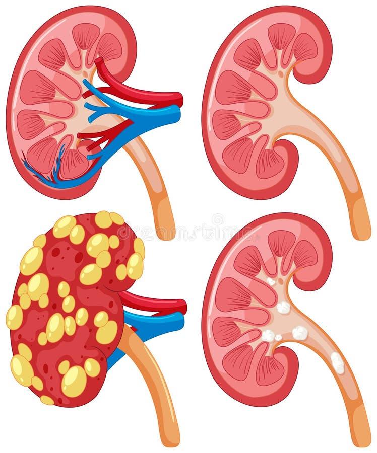 Diagram of kidney with disease. Illustration stock illustration