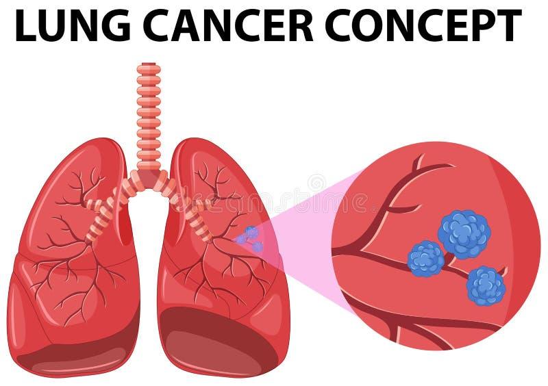 Diagram of lung cancer concept. Illustration royalty free illustration