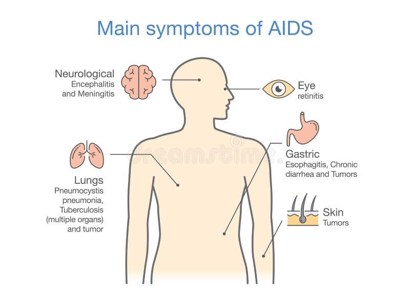 Diagram of Main symptoms of AIDS. stock illustration