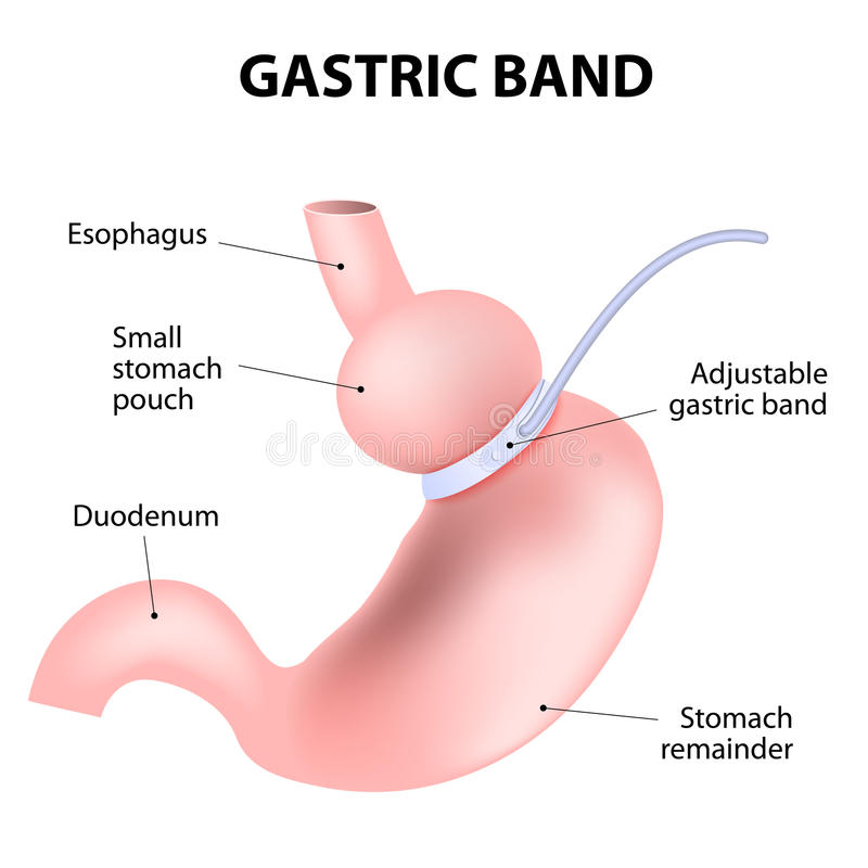 Free Diagram Of An Adjustable Gastric Band Stock Photography - 49014512