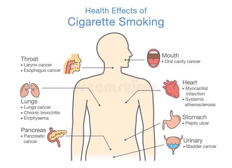 Diagram over gevolgen voor de gezondheid van het roken van sigaretten stock illustratie