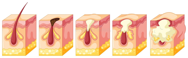 Diagram of pimple on human skin. Illustration stock illustration
