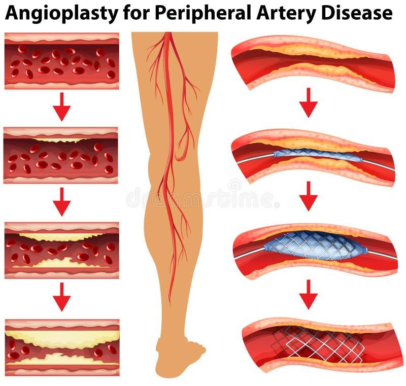 Diagram pokazuje angioplasty dla peryferyjnej arterii choroby ilustracji