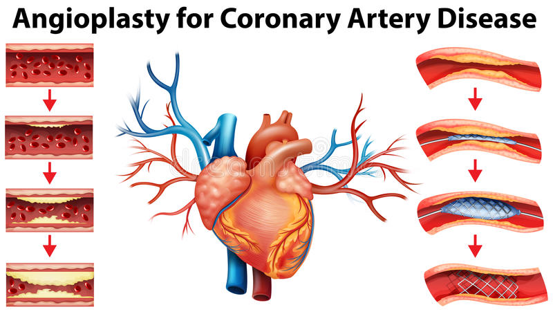 Diagram showing angioplasty for coronary artery disease royalty free illustration