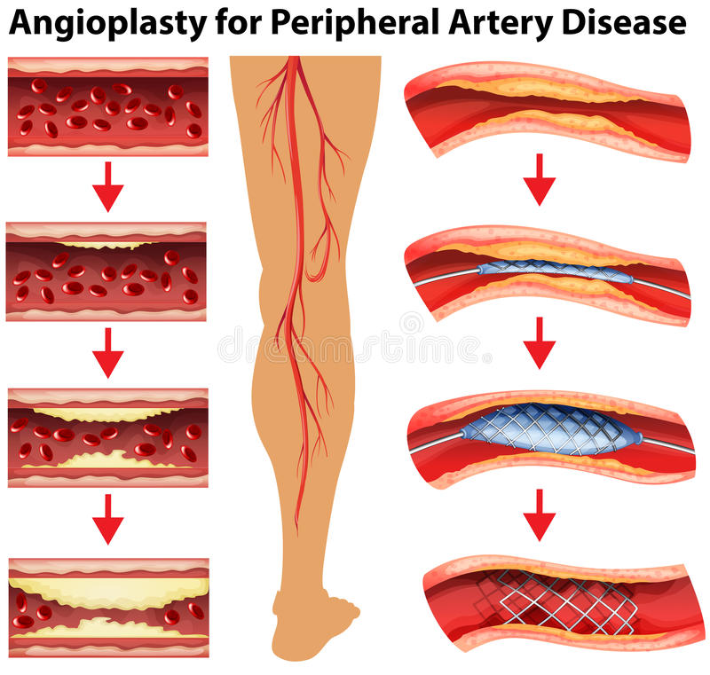 Free Diagram Showing Angioplasty For Peripheral Artery Disease Stock Photo - 73989910