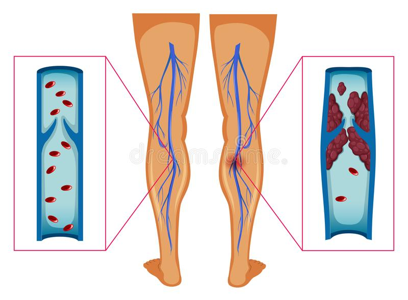 Diagram showing blood clot in human legs vector illustration
