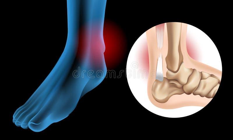 Diagram showing Chronic Achilles tendon tear. Illustration vector illustration