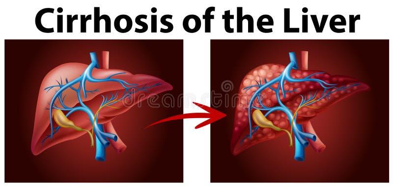 Diagram showing cirrhosis of the liver. Illustration royalty free illustration