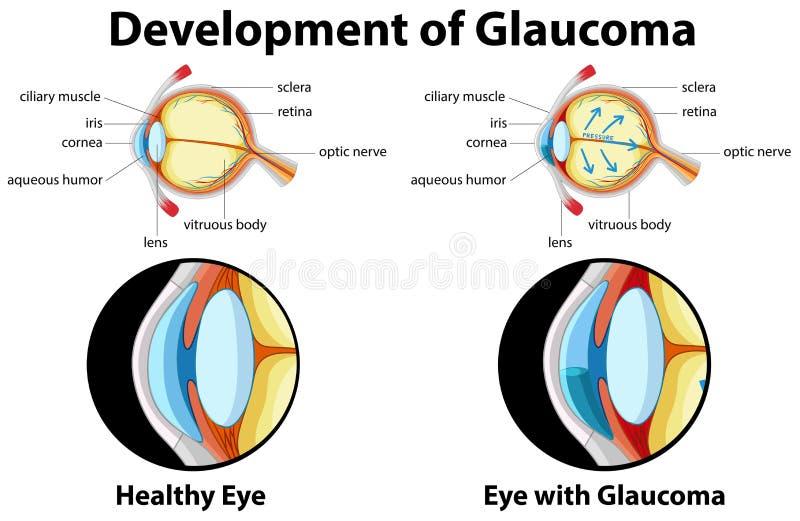 Diagram showing development of glaucoma. Illustration royalty free illustration