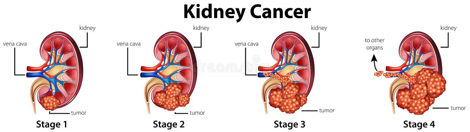 Diagram showing different stages of kidney cancer stock illustration