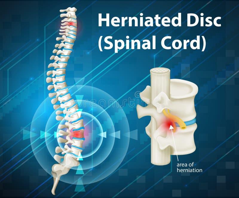 Diagram showing herniated Disc. Illustration vector illustration