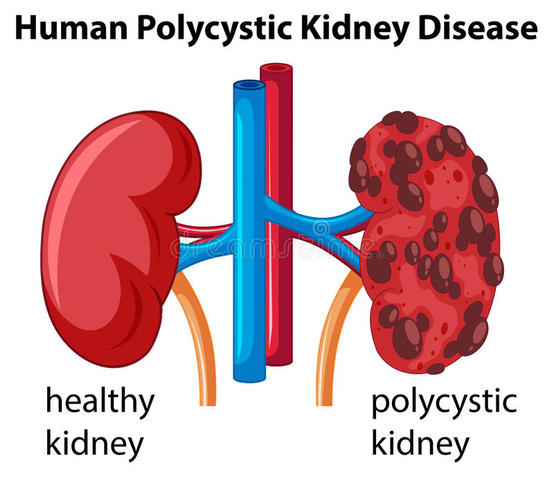 Diagram showing human polycystic kidney disease stock vector download diagram showing human polycystic kidney disease stock vector illustration of clipart kidney ccuart Images