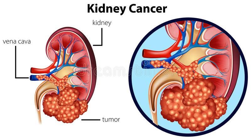 Diagram showing kidney cancer royalty free illustration