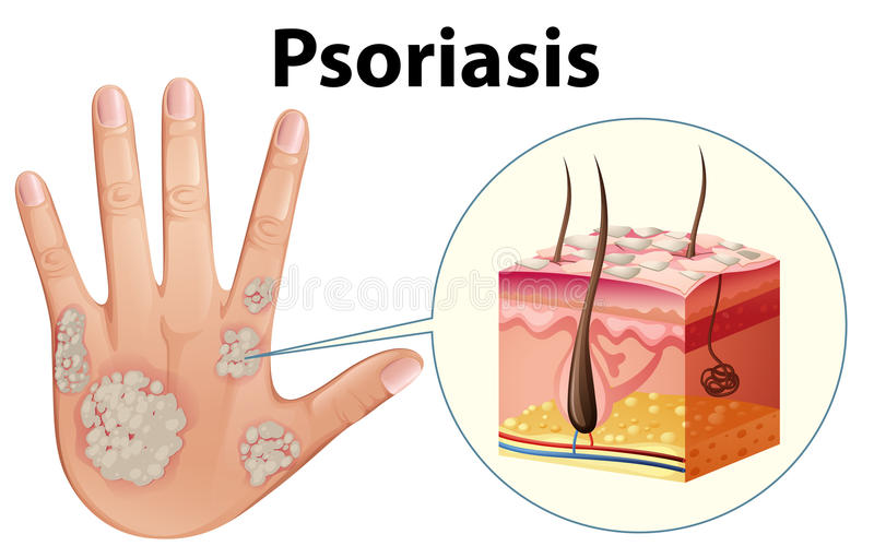 Diagram showing psoriasis on human hand. Illustration stock illustration