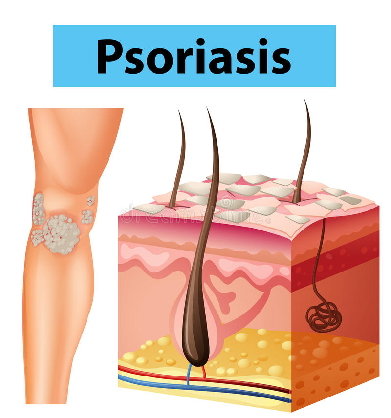 Diagram showing psoriasis on human skin royalty free illustration