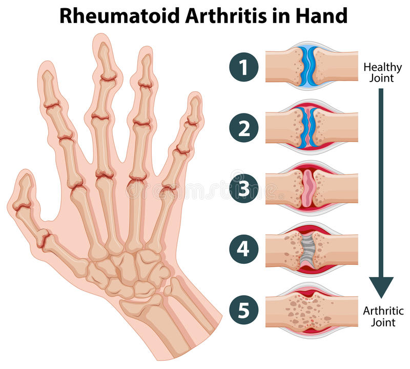 Diagram showing rheumatoid arthriitis in hand stock illustration