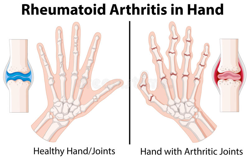 Diagram Showing Rheumatoid Arthritis In Hand Stock Vector