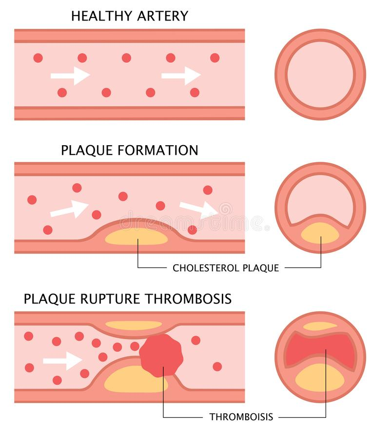 Atherosclerosis stages: healthy artery, plaque formation, and thrombosis in flat style isolated on white background. health care c vector illustration
