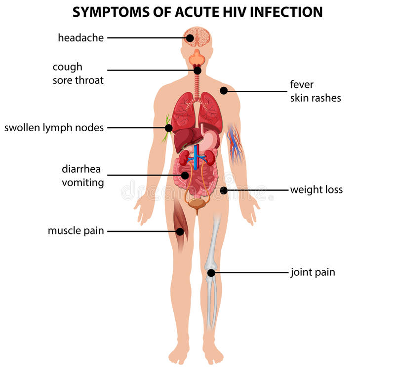 diagram showing symptoms of acute hiv infection stock. Black Bedroom Furniture Sets. Home Design Ideas