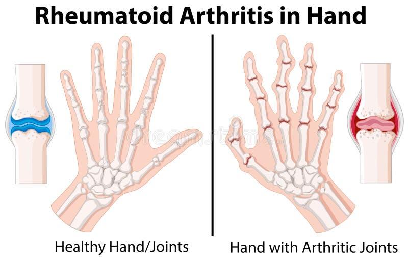 Diagram som visar reumatoid artrit i hand royaltyfri illustrationer