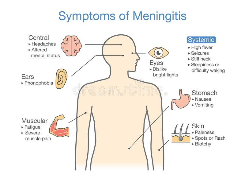 Diagram to showing patient symptoms with Meningitis disease. stock illustration