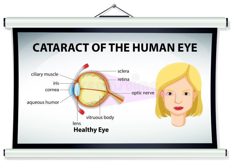 Diagram van cataract in menselijk oog royalty-vrije illustratie