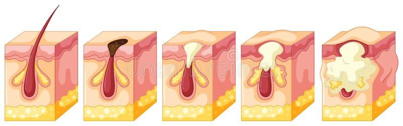Diagram van pukkel op menselijke huid stock illustratie