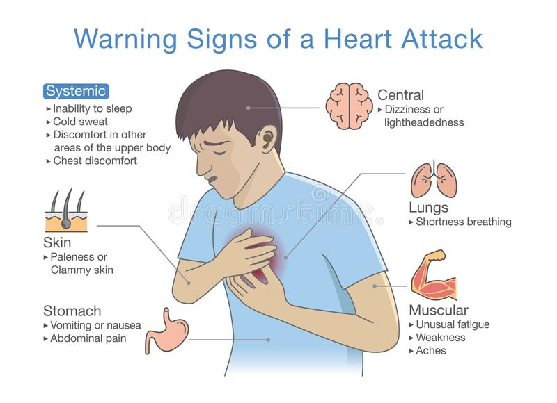 Diagram about warning signs of a heart attack. Illustration about disease symptoms when occurring stock illustration
