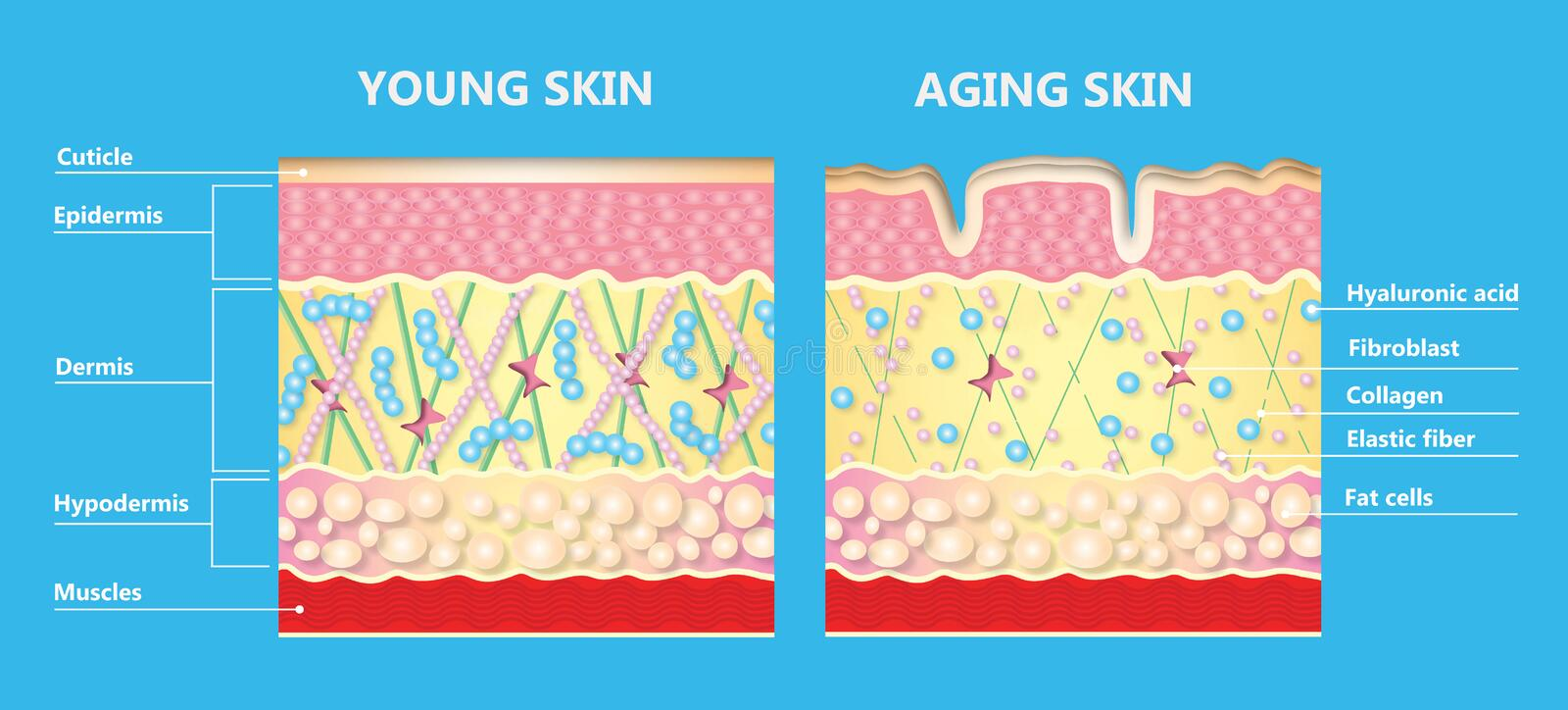 The diagram of younger skin and aging skin vector illustration