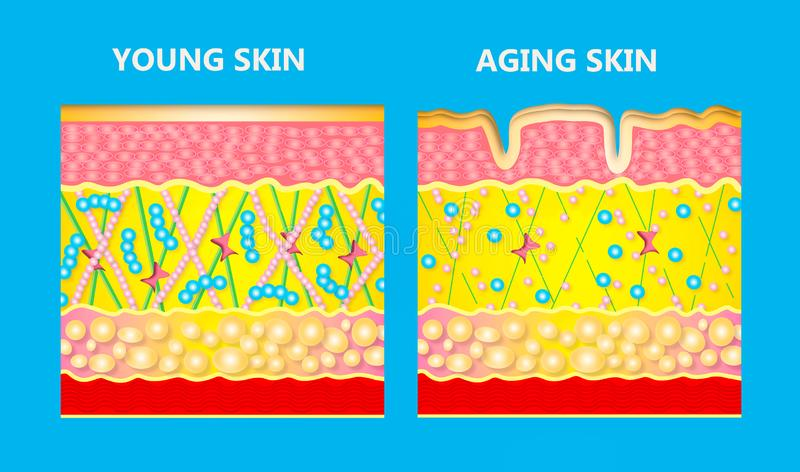 The diagram of younger skin and aging skin royalty free illustration